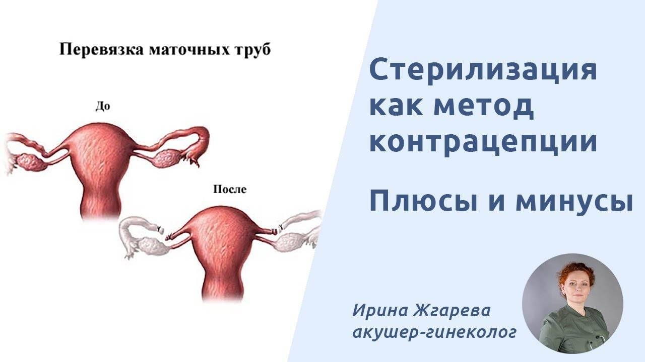 Перевязка маточных труб во время кесарева сечения: кому надо делать, как проходит, последствия, месячные после, как развязать