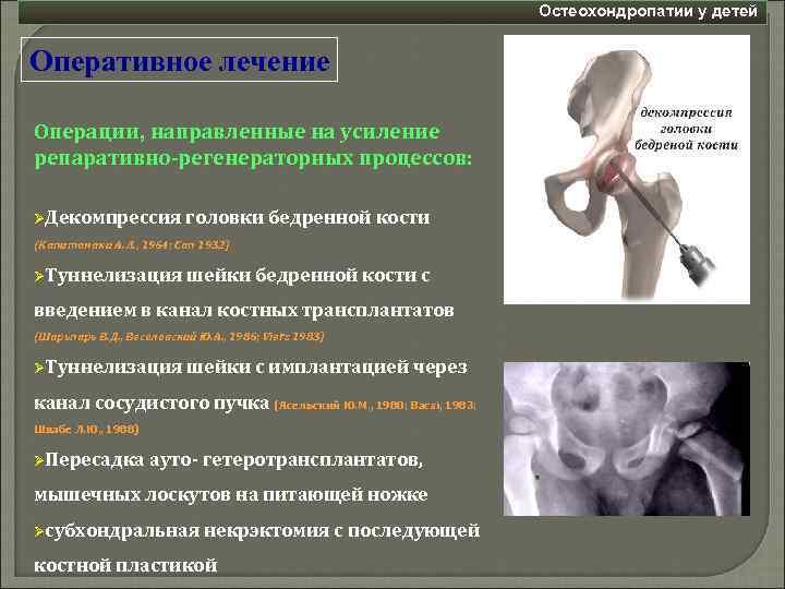 Болезнь пертеса тазобедренного сустава у детей лечение