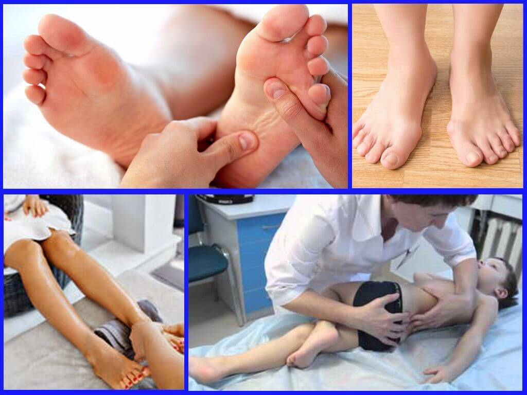 Варусная деформация стопы: причины, симптомы, способы лечения и осложнения