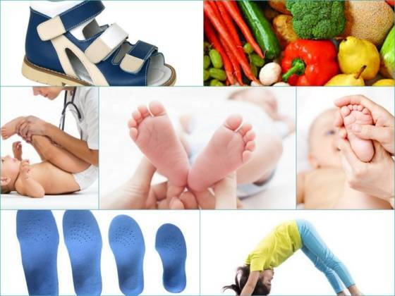 Плоскостопие у детей причины профилактика и методы лечения