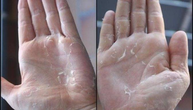 У ребенка на пальцах облазит кожа - почему шелушится кожа и что делать? stomatvrn.ru