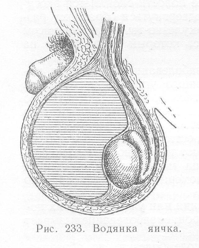 Каковы причины водянки яичка у ребенка?