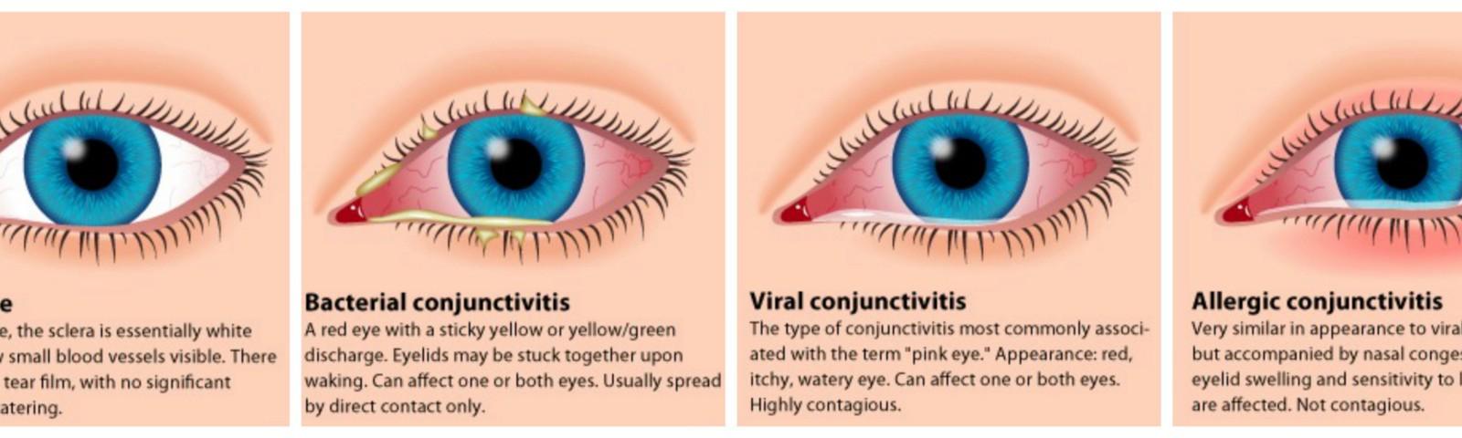 Особенности лечения вирусного конъюнктивита у детей