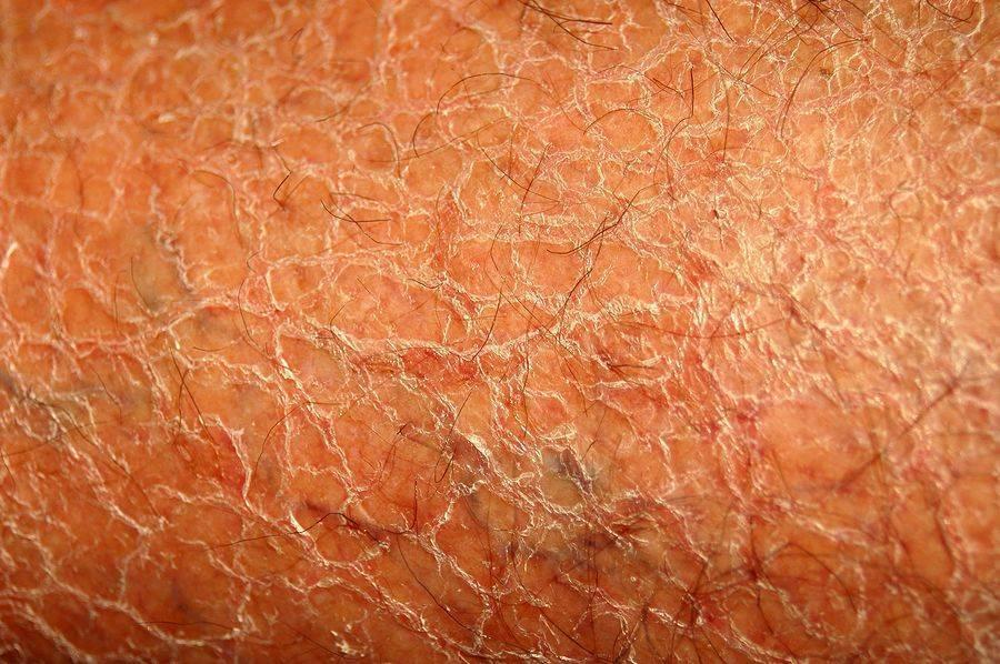 Трескается кожа на руках: причины и лечение у ребенка и взрослого