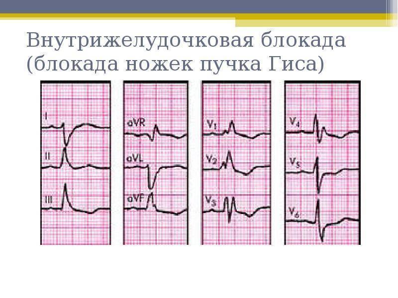 Нарушение внутрижелудочковой проводимости сердца у детей на экг