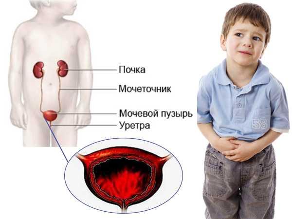 Цистит у мальчиков симптомы и лечение в домашних условиях - лечение