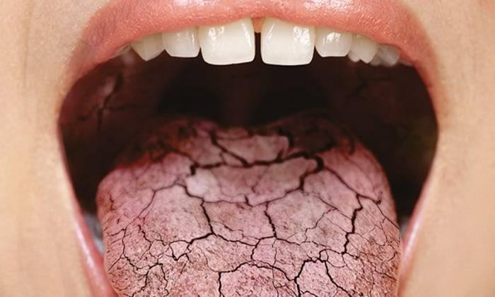 Сухость во рту: в чем причина и как от нее избавиться?