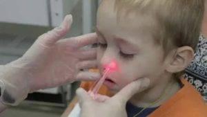 Обострение аденоидита у детей — лечение