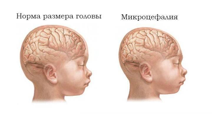 Как лечат нейробластому у детей?