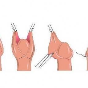 Фимоз у мальчиков: что это такое, как открывается головка полового члена у ребенка, лечение без операции
