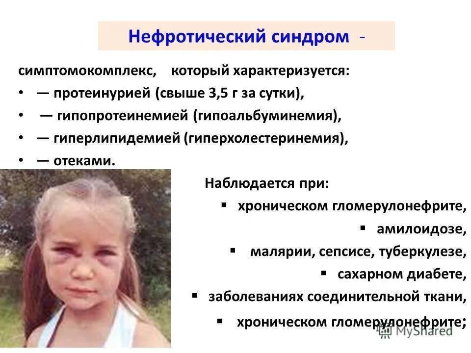 Нефротический синдром у детей: причины, симптомы, лечение. прогноз. клинический протокол
