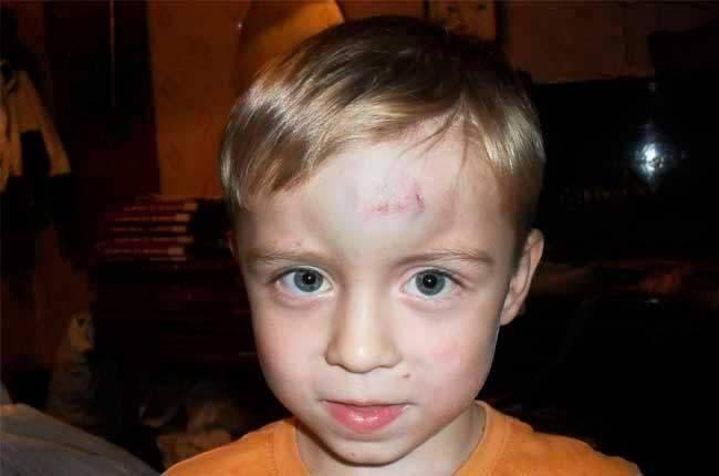Ребенок ударился головой: что делать, на что обратить внимание