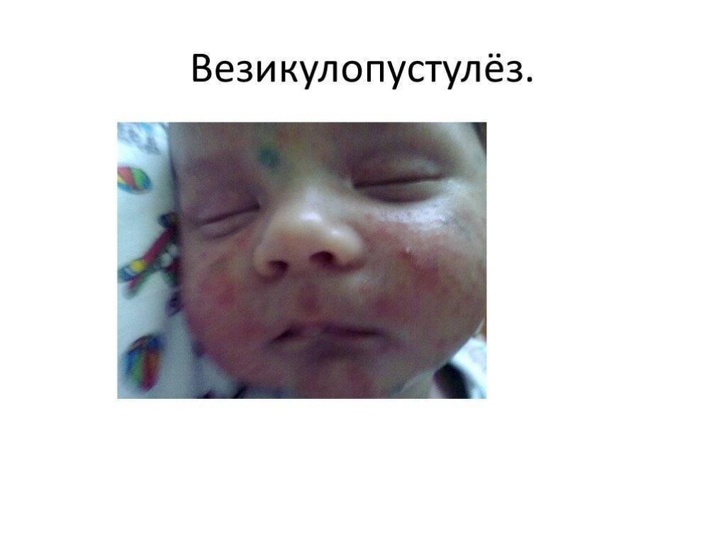 Врожденный везикулопустулез новорожденных: этиология и причины, лечение и профилактика - о здоровье