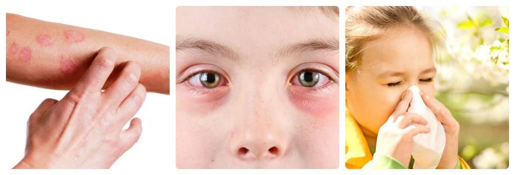 Какие показатели крови указывают на аллергию