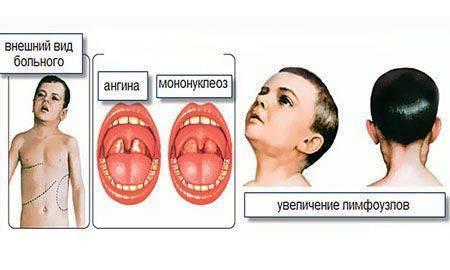Е. комаровский: мононуклеоз у детей - симптомы и лечение, диета и восстановление