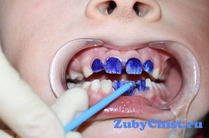 Серебрение зубов у детей: за и против
