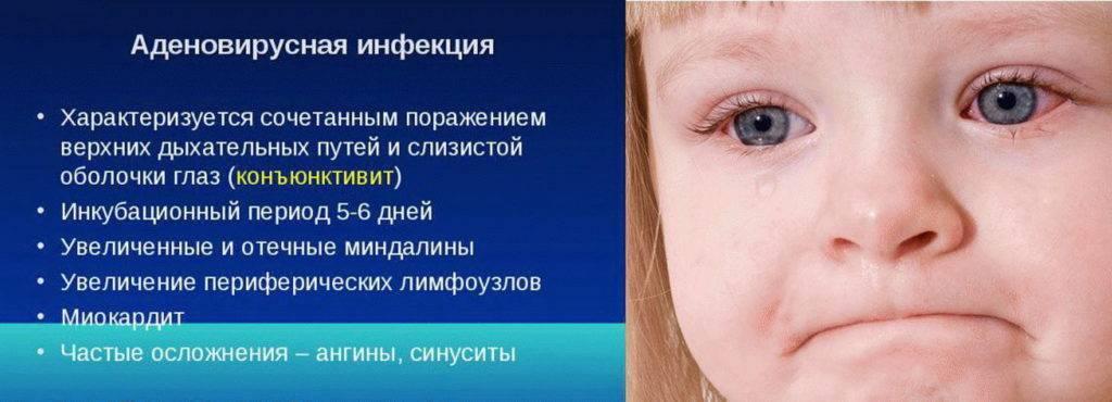 Вирусная экзантема у детей (31 фото): симптомы и лечение вирусной экзантемы - розеолы с сыпью, признаки энтеровирусной экзантемы, профилактика