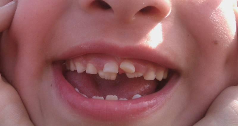 Молочные зубы растут криво: причины, лечение и профилактика