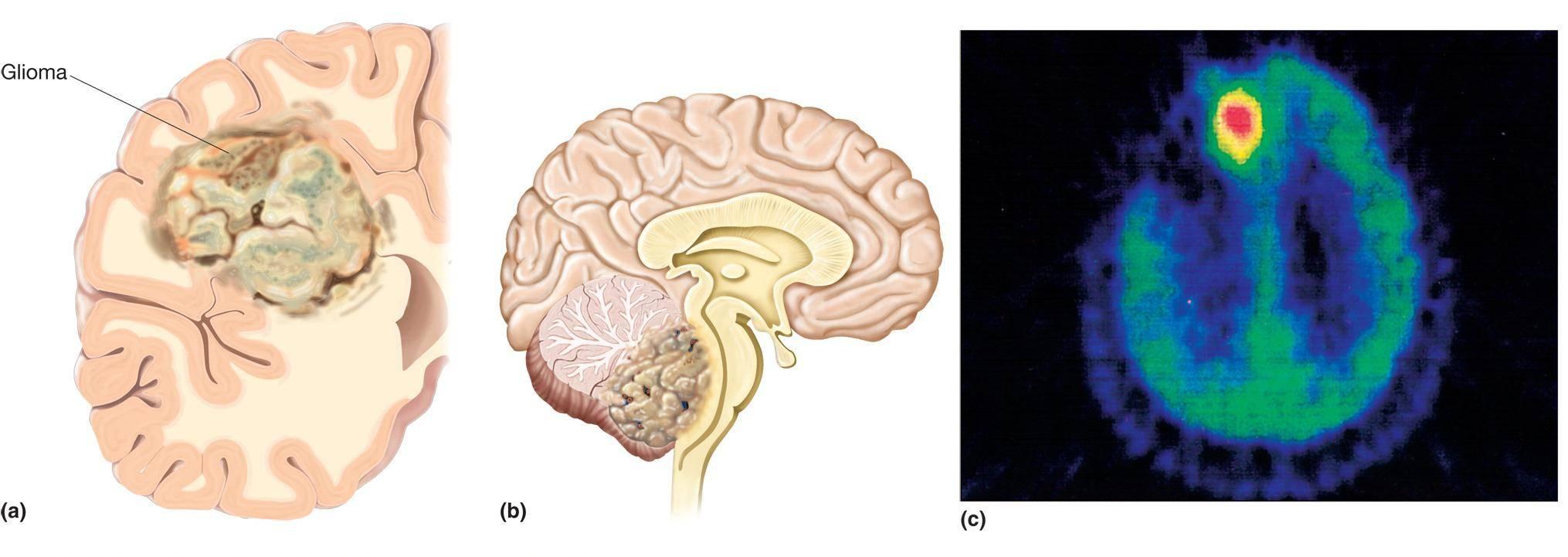 Стадии опухоли головного мозга: признаки, симптомы, виды, прогноз, лечение