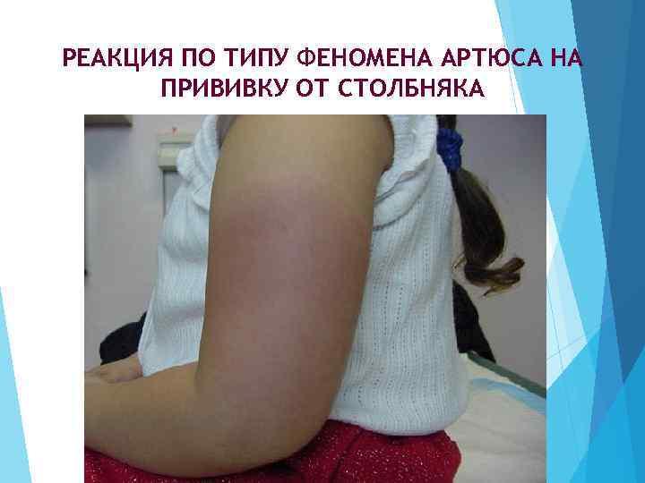 Прививка акдс взрослым людям: когда делают, вакцины от столбняка и дифтерии без коклюша