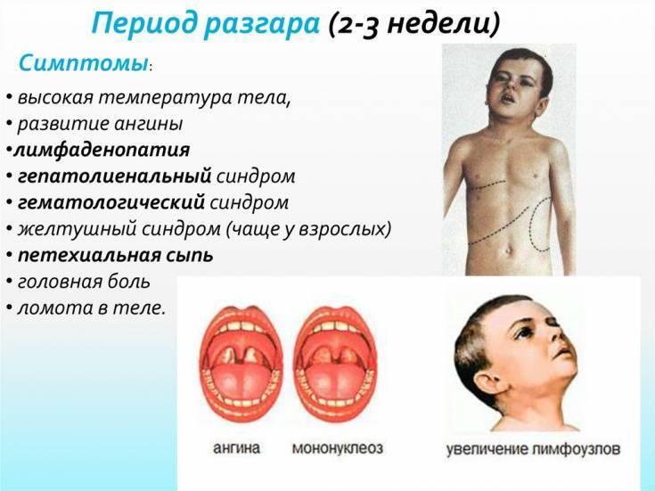 Мононуклеоз у детей: причины, симптомы, лечение и профилактика, последствия