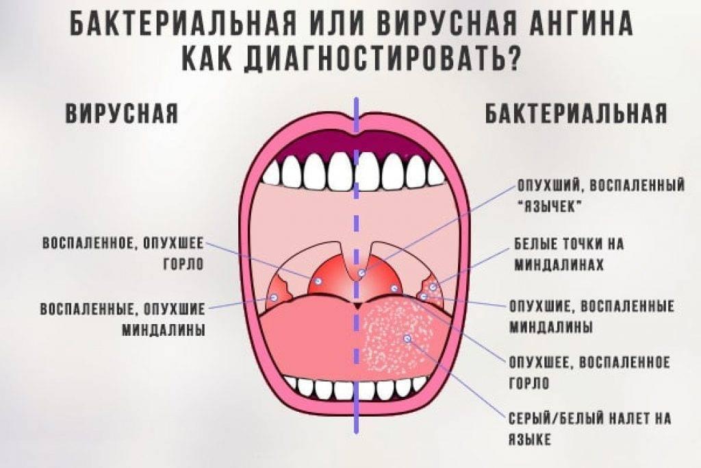 Тонзиллит при грудном вскармливании