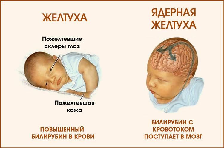 Неонатальная желтуха новорожденных: причины и последствия