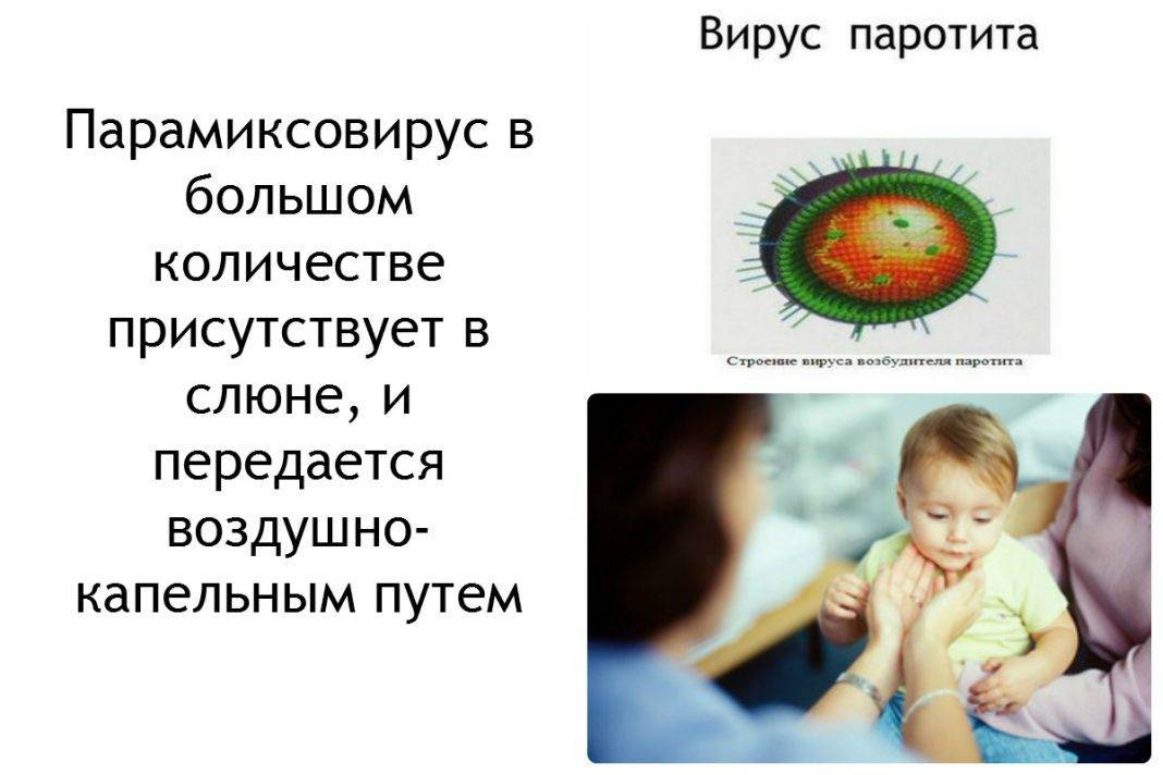 Симптомы паротита (свинки) у детей на разных стадиях, методы лечения и профилактики болезни