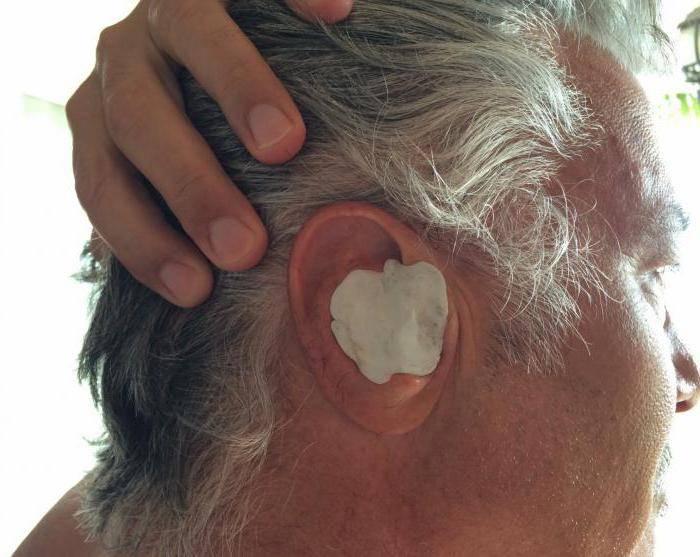 После промывания носа заболело ухо, что делать?