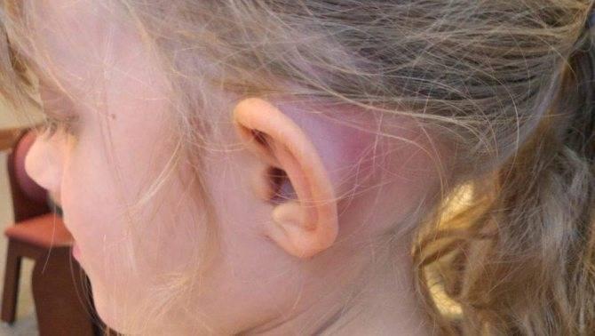 Под мочкой уха трескается кожа - помощьлечение