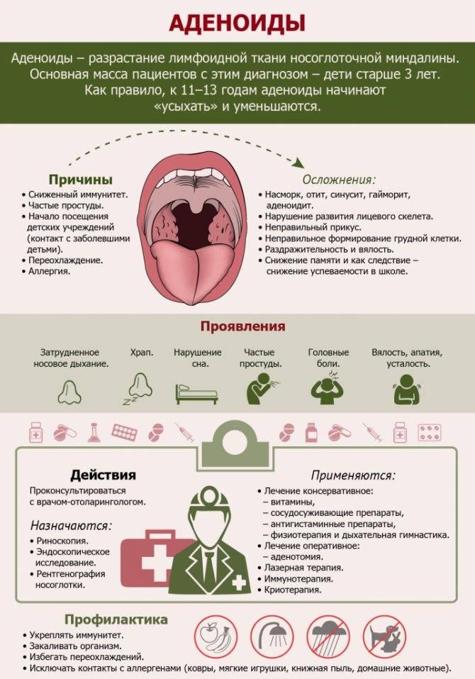 Ингаляции при аденоидах у детей небулайзером | компетентно о здоровье на ilive