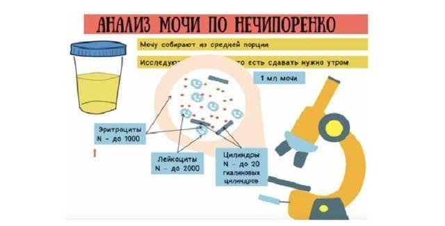 Анализ мочи на лейкоциты: норма у детей и причины отклонения показателей