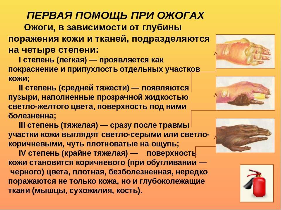 Лечение ожога 2 степени в домашних условиях у ребенка - wc-master.ru
