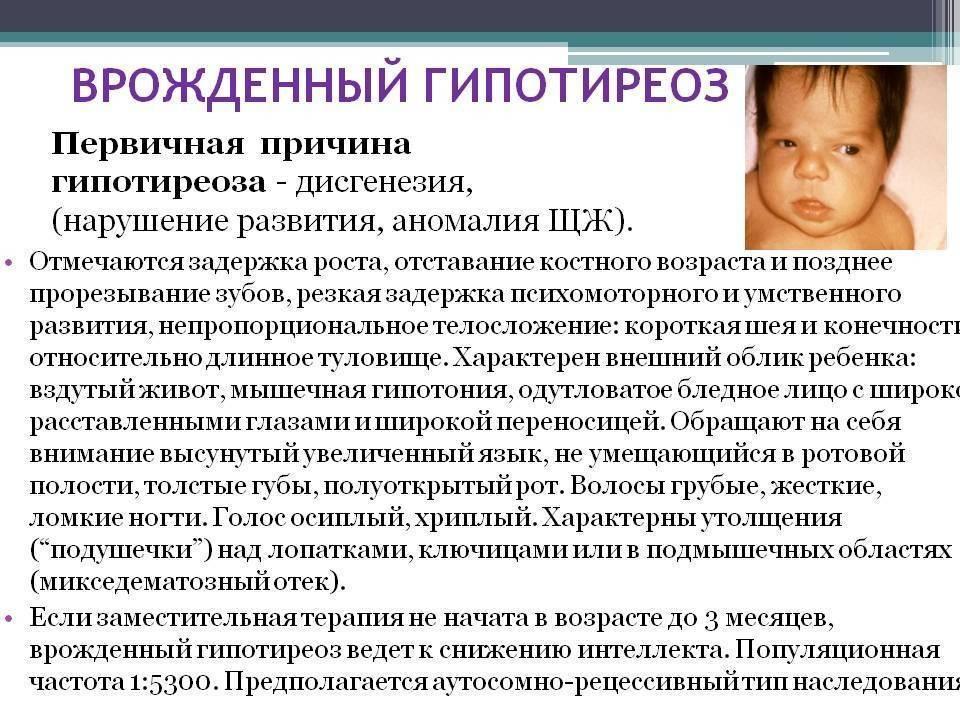 Врожденный гипотиреоз у детей до года: симптомы у новорожденных и лечение