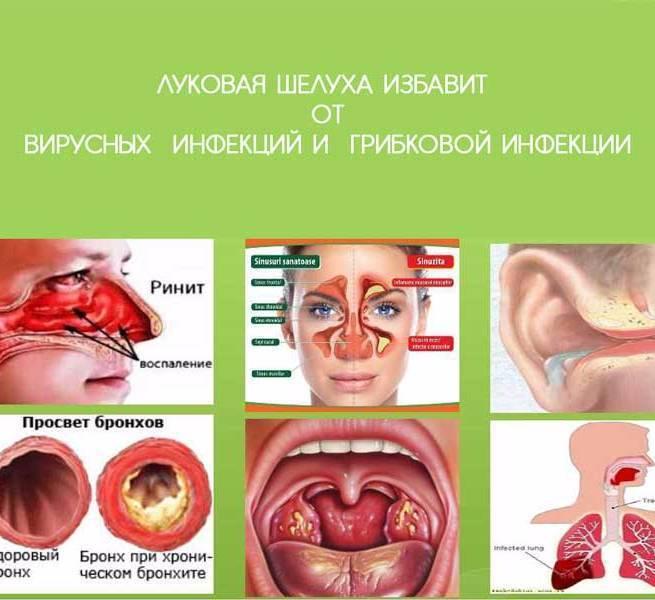 Бактериальная ангина: симптомы, лечение у взрослых и детей