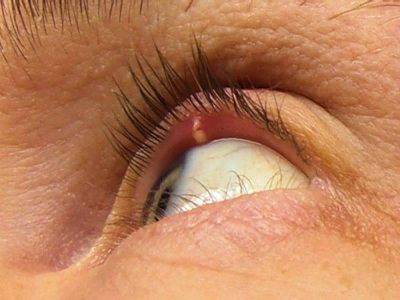У собаки на глазу появился ячмень (красная шишка): что делать, способы лечения