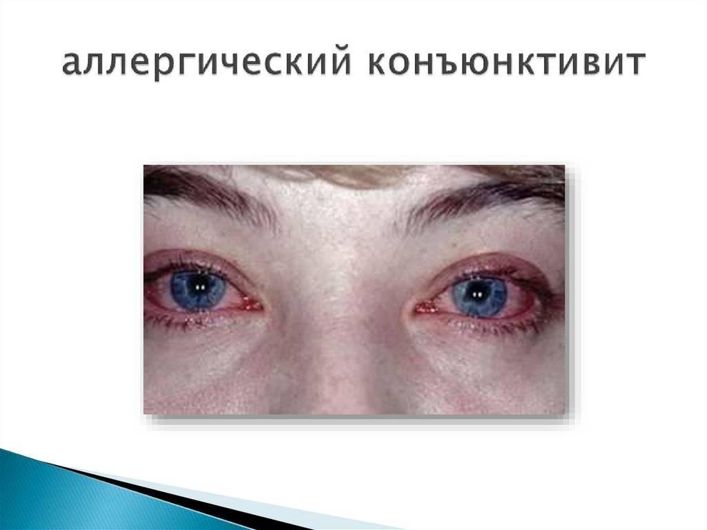 Особенности лечения аллергического конъюнктивита у ребёнка