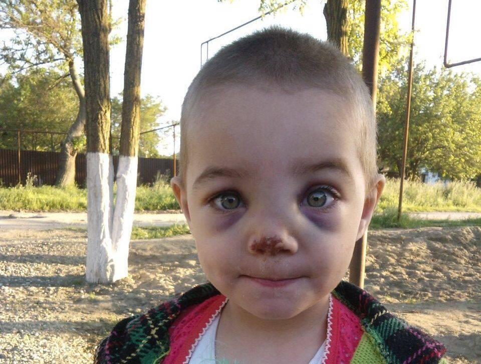 Перелом носа у ребенка: симптомы, признаки, лечение