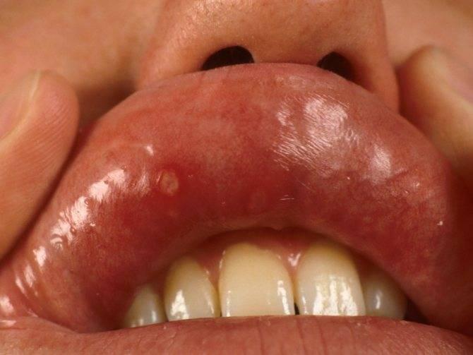 Сыпь на языке у ребенка (24 фото): высыпания во рту и на небе, причины красной сыпи