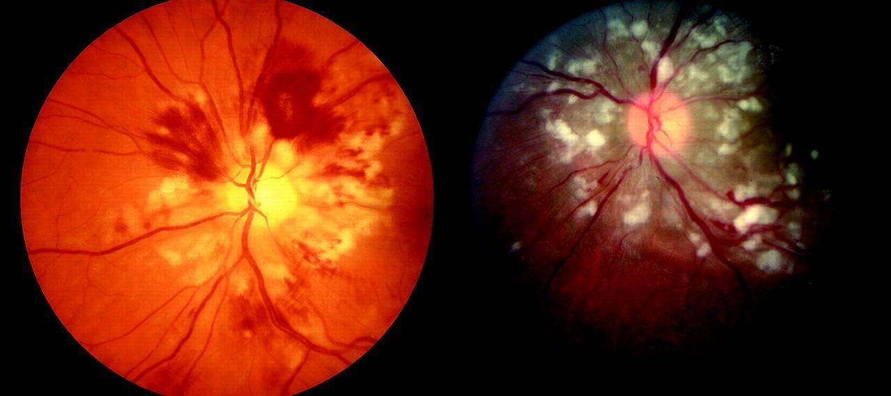 Ангиопатия сосудов сетчатки глаза у ребенка (в т.ч. у новорожденного) - причины и лечение