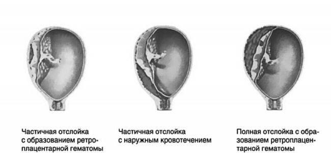 Отслойка плодного яйца: причины, симптомы, лечение / mama66.ru