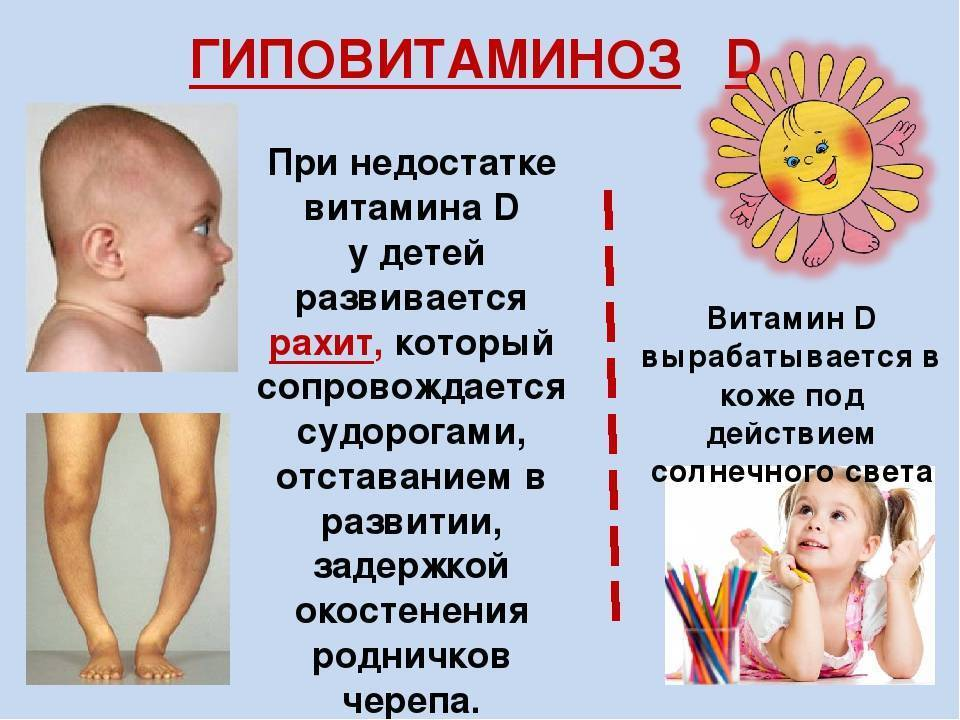 Рахит у грудничков - симптомы, признаки и лечение