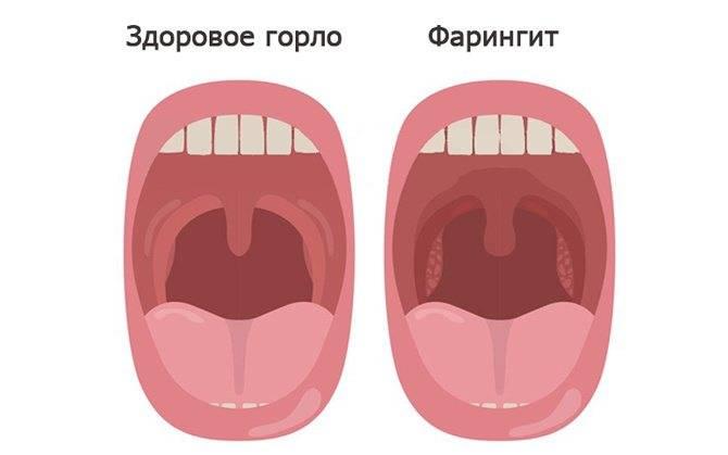 Фарингит у детей: симптомы, формы, лечение