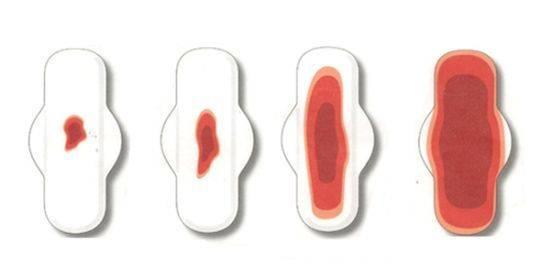 Выделения после переноса эмбриона: норма и патология