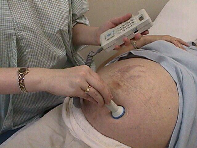 Обвитие пуповиной: причины, диагностика, последствия, профилактика - наблюдение беременности.  здоровье