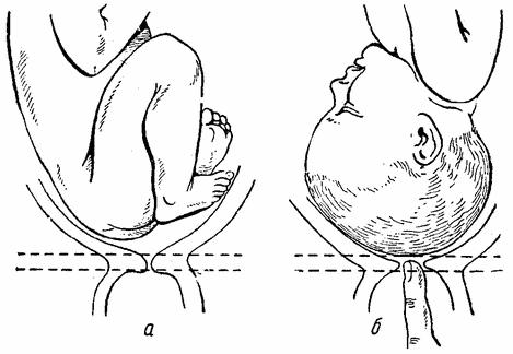 """Как ускорить раскрытие шейки матки перед родами в домашних условиях: """"мужетерапия"""" и упражнения"""