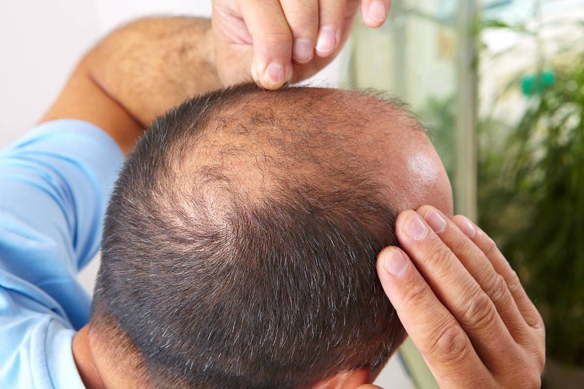 могут ли от простатита выпадать волосы