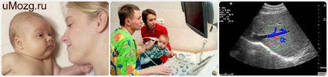 Дилатация (увеличение) боковых желудочков головного мозга у новорожденных
