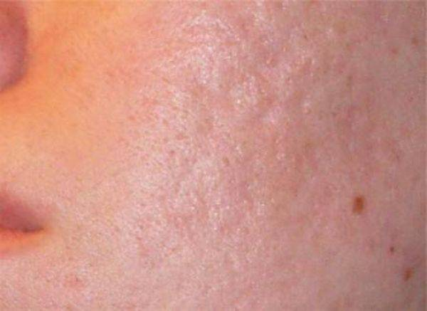Средство от ямок после ветрянки: как избавиться от шрамов и убрать оспинки, рубцы