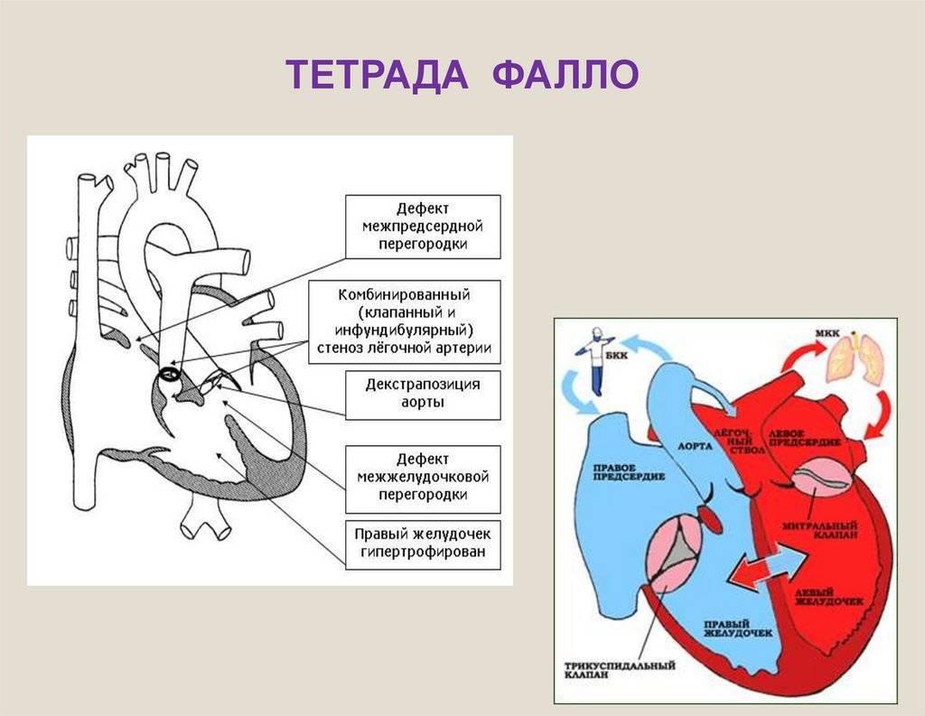 Дефект межжелудочковой перегородки сердца (дмжп) у новорожденных детей и взрослых: лечение и прогноз